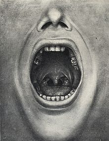 Illustration of a mouth with teeth removed from Cotton's book The defective delinquent and insane: the relation of focal infections to their causation, treatment and prevention.